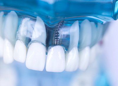 Dental Implants at Oral and Facial Surgery Center